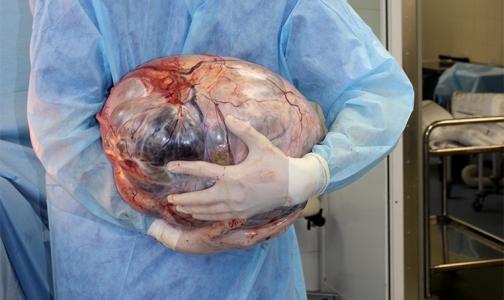 Причиной лишнего веса москвички оказалась 21-килограммовая опухоль