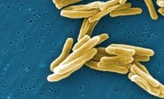 Ученые выяснили, почему российский туберкулез заразнее зарубежного