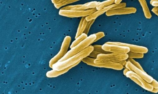 Ученые пояснили экстремальную живучесть русского туберкулеза