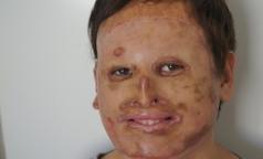 Российские хирурги подарили новое лицо 20-летнему пациенту