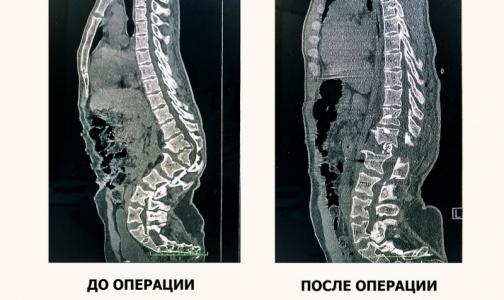 Краснодарские нейрохирурги спасли молодого парня от паралича ног, удалив ему горб