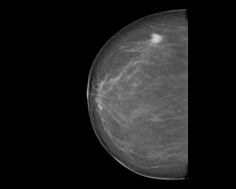 СМТ: Как победить рак. Что нужно знать женщинам