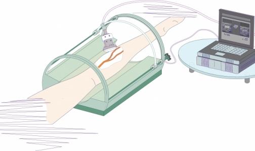 Петербургские ученые разработали новый метод лечения варикоза
