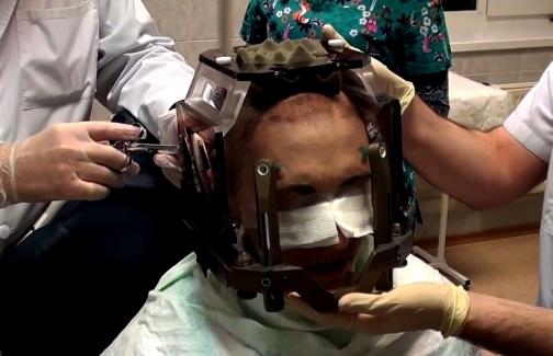 Петербургские врачи спасли от слепоты пациентку из Сербии, страдающую раком груди