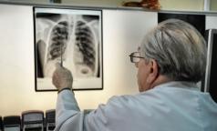 Пациенты петербургских клиник оказались в группе риска по туберкулезу