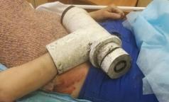 В детском лагере мясорубка перемолола руку петербурженке