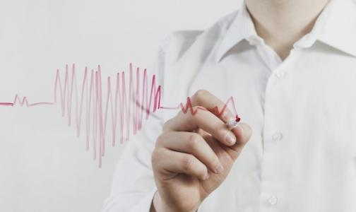 В Петербурге смертность от болезней сердца достигла исторического минимума
