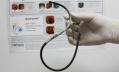 С забытым врачами зондом в желудке женщина без проблем прожила 17 лет