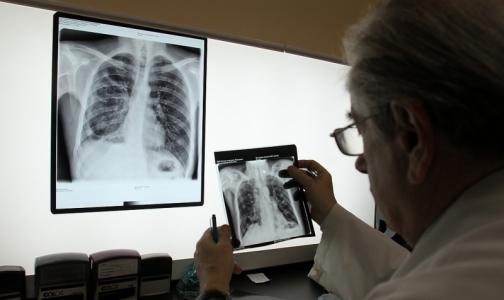 Петербургские врачи предложили лечить туберкулез методом «кнута и пряника»