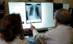ВОЗ назвала туберкулез самой смертоносной инфекцией в мире
