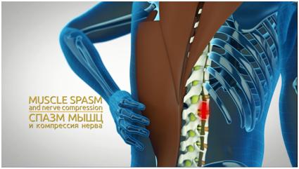 Протрузия дисков шейного и поясничного отдела позвоночника: как лечить?