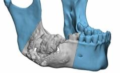 Петербургские хирурги по-новому восстанавливают деформированную челюсть
