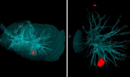 В петербургском Политехе научили искусственный интеллект выявлять рак легких за 20 секунд
