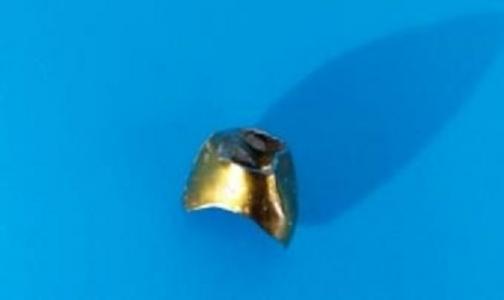 У мужчины с атеросклерозом при госпитализации случайно нашли «золото» в легких