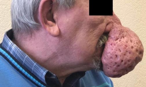 Петербургские врачи уменьшили нос пациента на полкилограмма