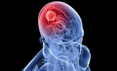 Редкая операция сохранила петербурженке с опухолью мозга способность двигаться и говорить
