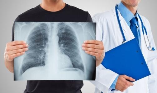 Врач: Флюорография — огромные затраты для бессмысленного обследования здоровых людей