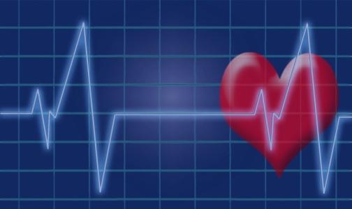 Эксперты назвали регионы с самой высокой и низкой смертностью от болезней сердца