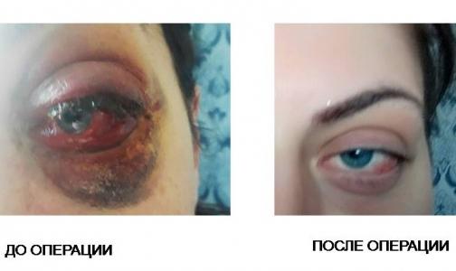 Петербургские врачи спасли молодую женщину от инвалидности и сохранили зрение