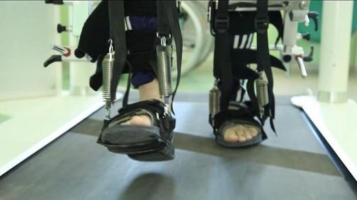 Рассеянный склероз: лечение и реабилитация