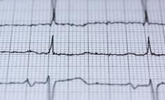 Ученые СПбГУ заподозрили аутоиммунитет в причастности к аритмии и внезапной смерти