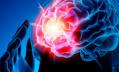 Петербургский невролог: Чтобы спасти человека с инсультом, действуйте быстрее