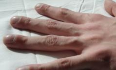 Петербуржцы с тяжелым генетическим заболеванием ждут обещанных медизделий от города
