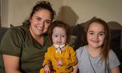 Врачи рассказали, как живет единственная в мире девочка с «болезнью Бенджамина Баттона»