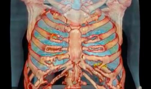 Американские медики показали 3D-видео органов пациента с коронавирусом