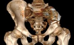 В НМИЦ онкологии поставили на ноги петербуржца с остеосаркомой через 4 дня после операции