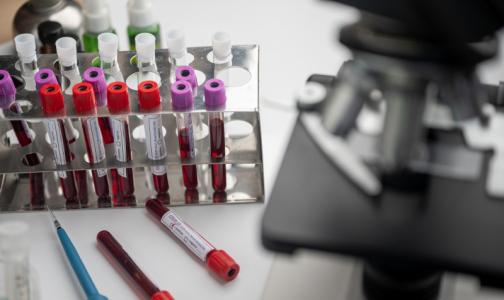 Глава ФМБА рассказала, каким пациентам с COVID-19 не помогает лечение плазмой крови