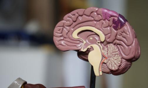 Нервные клетки восстанавливаются. Петербургский невролог рассказал, как это происходит