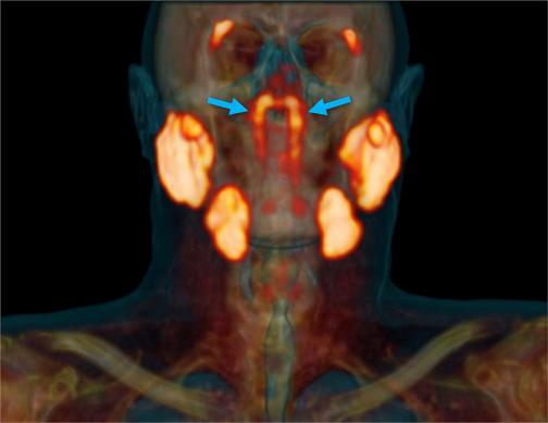 Ученые обнаружили новый орган у человека - он находится в голове