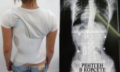 Можно ли вылечить сколиоз без операции у детей